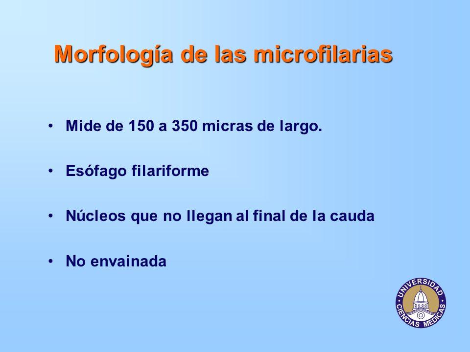 Morfología de las microfilarias