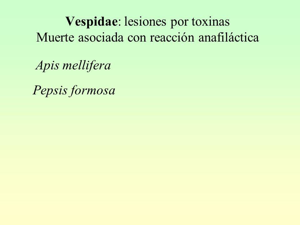 Vespidae: lesiones por toxinas Muerte asociada con reacción anafiláctica