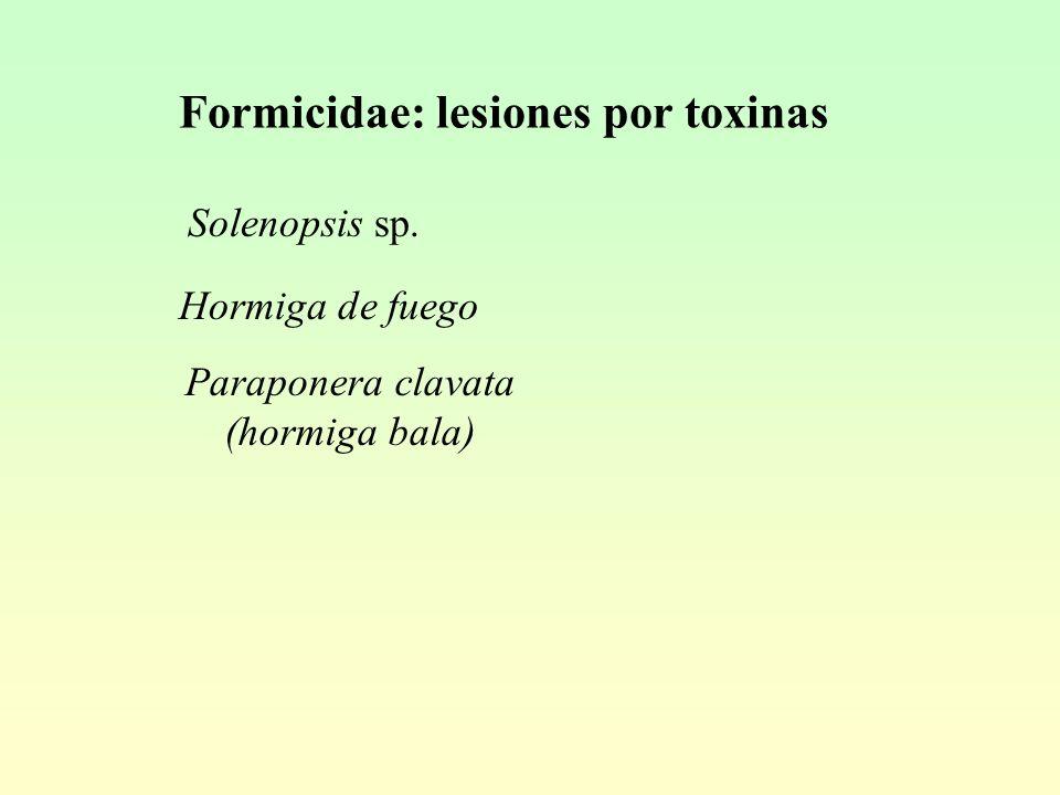 Formicidae: lesiones por toxinas