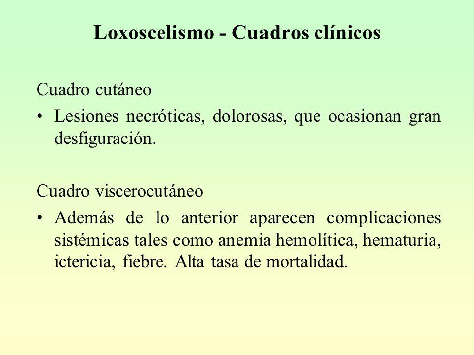Loxoscelismo - Cuadros clínicos