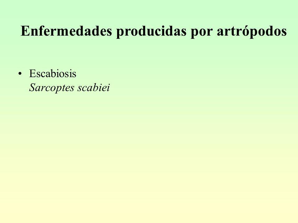 Enfermedades producidas por artrópodos