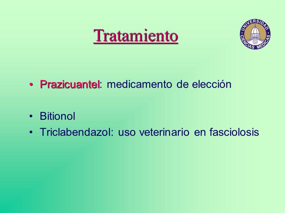 Tratamiento Prazicuantel: medicamento de elección Bitionol