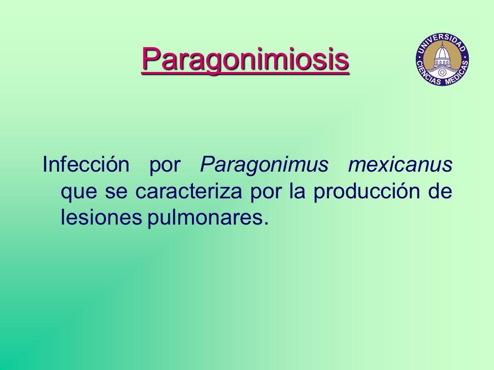 Paragonimiosis Infección por Paragonimus mexicanus que se caracteriza por la producción de lesiones pulmonares.