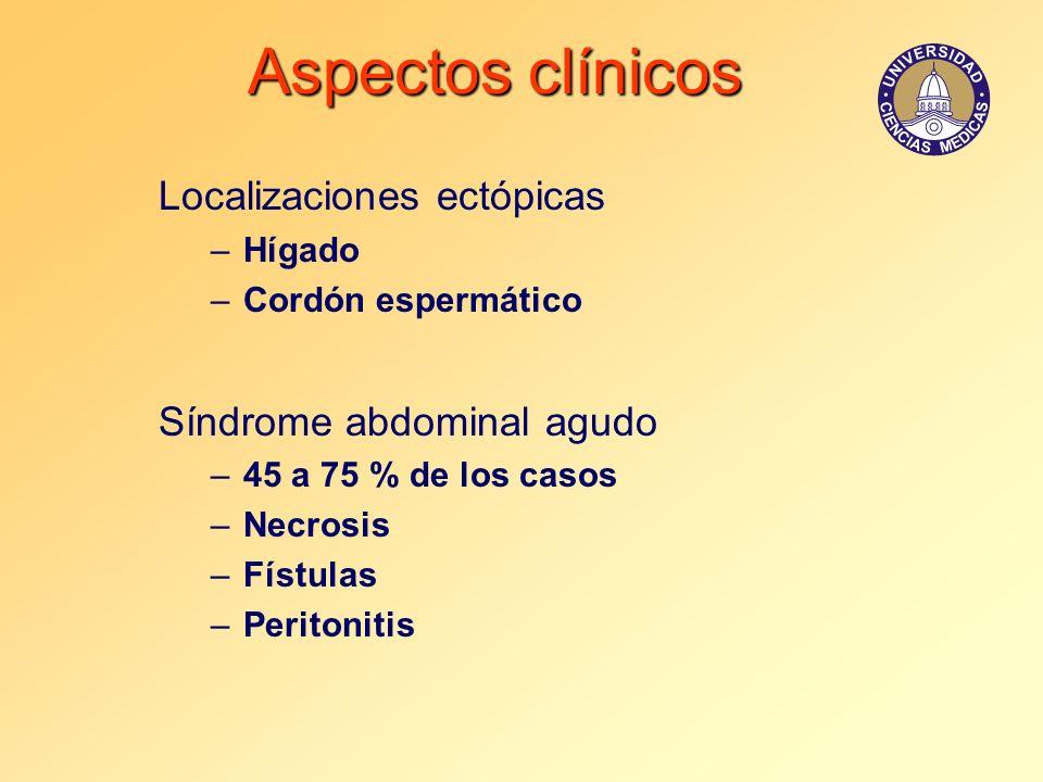 Aspectos clínicos Localizaciones ectópicas Síndrome abdominal agudo