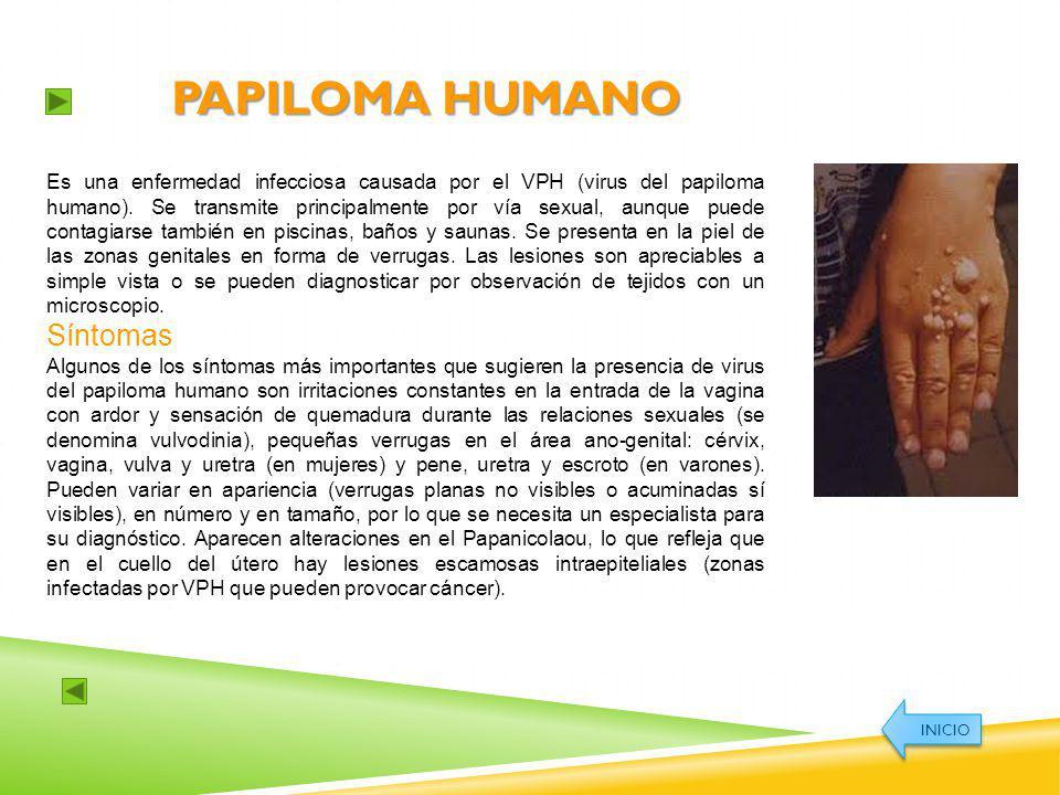 Papiloma humano Síntomas