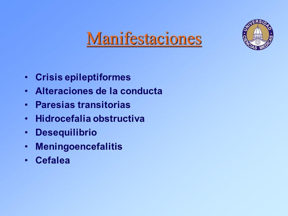 Manifestaciones Crisis epileptiformes Alteraciones de la conducta