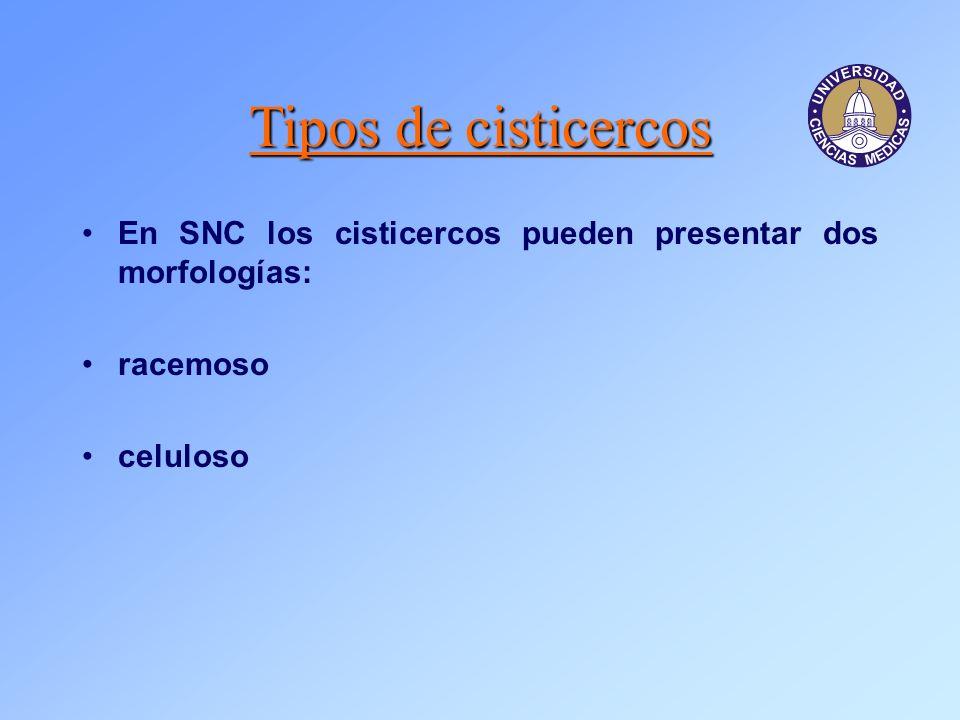Tipos de cisticercos En SNC los cisticercos pueden presentar dos morfologías: racemoso celuloso