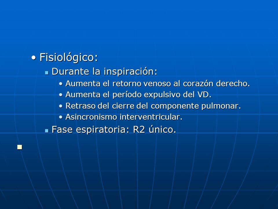 Fisiológico: Durante la inspiración: Fase espiratoria: R2 único.