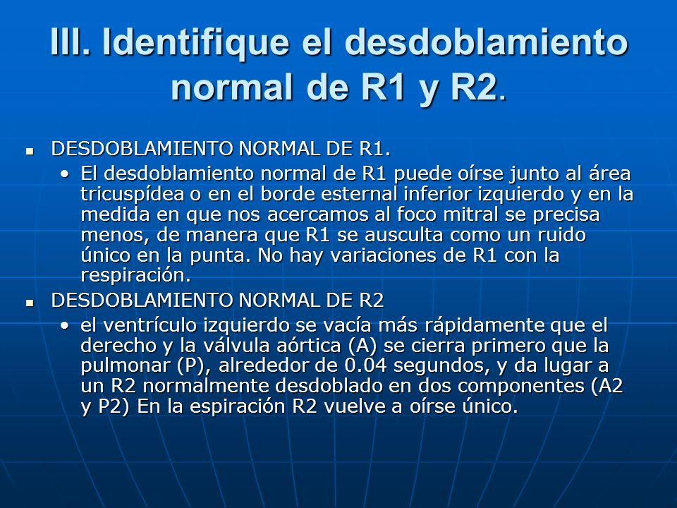 III. Identifique el desdoblamiento normal de R1 y R2.