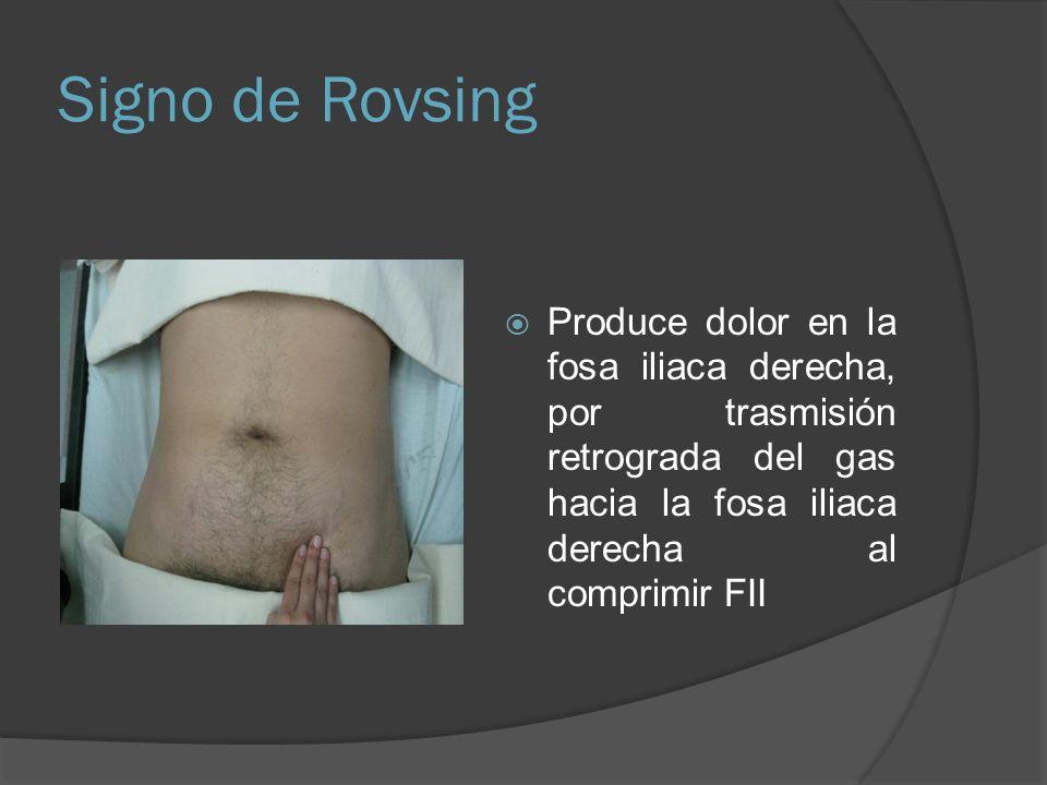 Signo de Rovsing Produce dolor en la fosa iliaca derecha, por trasmisión retrograda del gas hacia la fosa iliaca derecha al comprimir FII.