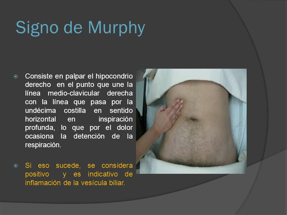 Signo de Murphy