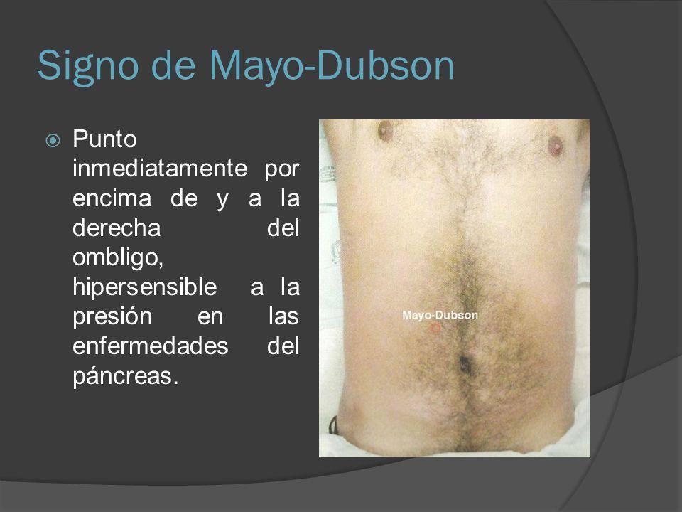 Signo de Mayo-Dubson Punto inmediatamente por encima de y a la derecha del ombligo, hipersensible a la presión en las enfermedades del páncreas.