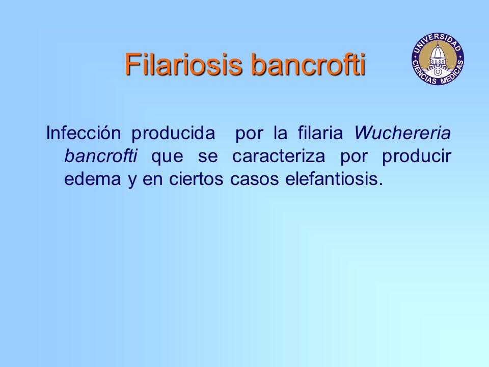 Filariosis bancrofti Infección producida por la filaria Wuchereria bancrofti que se caracteriza por producir edema y en ciertos casos elefantiosis.
