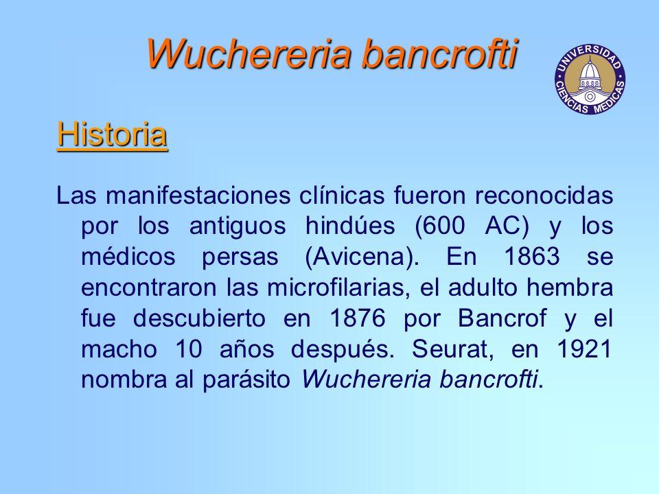 Wuchereria bancrofti Historia
