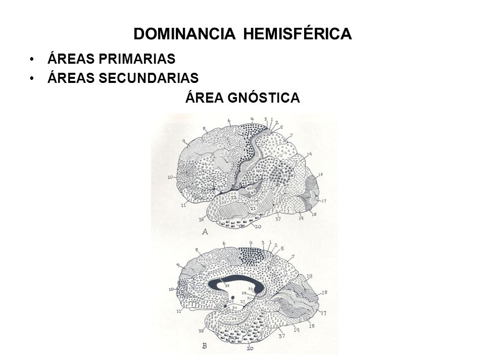 DOMINANCIA HEMISFÉRICA