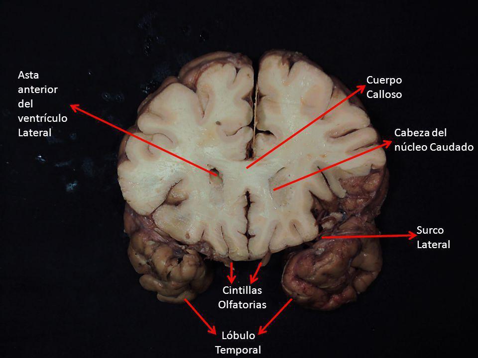 Asta anterior del ventrículo Lateral