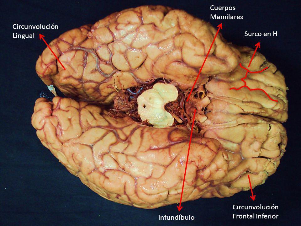 Cuerpos Mamilares Circunvolución Lingual Surco en H Circunvolución Frontal Inferior Infundíbulo