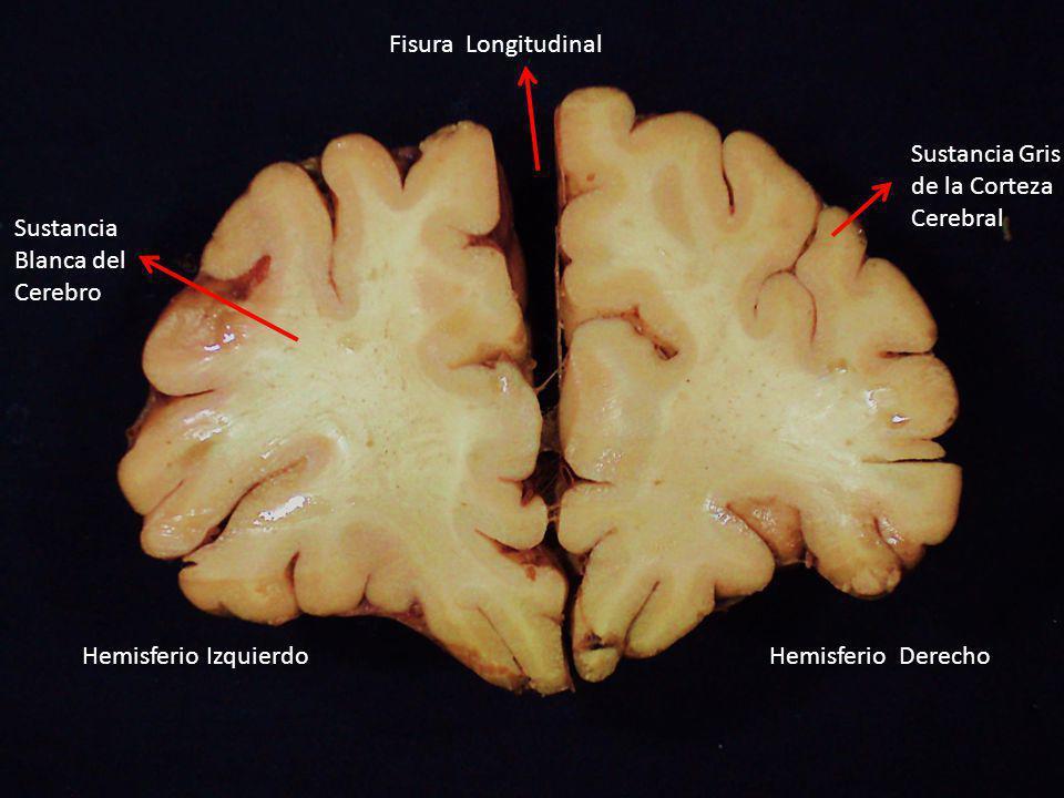 Fisura Longitudinal Sustancia Gris. de la Corteza. Cerebral. Sustancia. Blanca del. Cerebro. Hemisferio Izquierdo.
