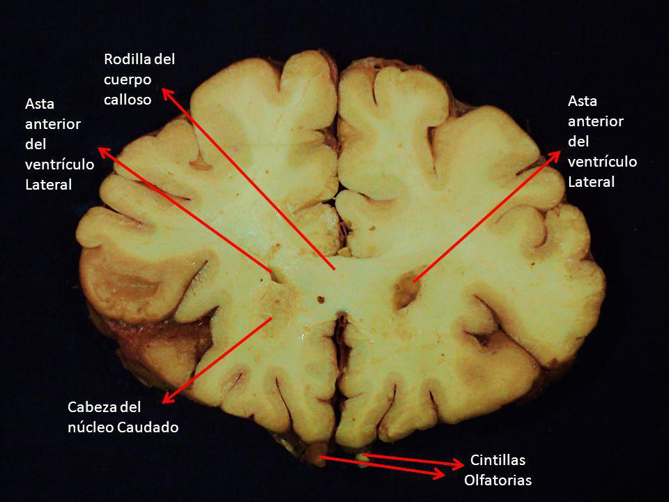 Rodilla del cuerpo. calloso. Asta anterior del ventrículo Lateral. Asta anterior del ventrículo Lateral.