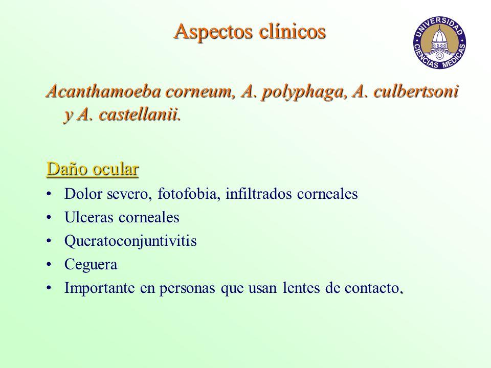 Aspectos clínicos Acanthamoeba corneum, A. polyphaga, A. culbertsoni y A. castellanii. Daño ocular.
