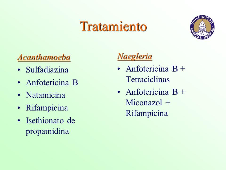 Tratamiento Acanthamoeba Naegleria Sulfadiazina