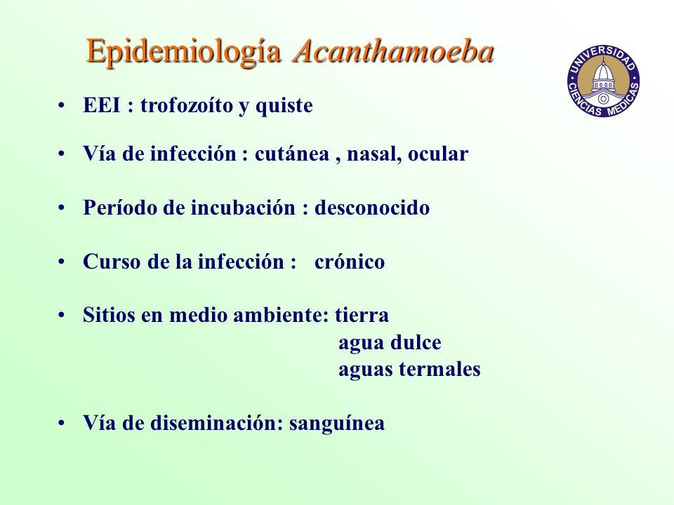 Epidemiología Acanthamoeba