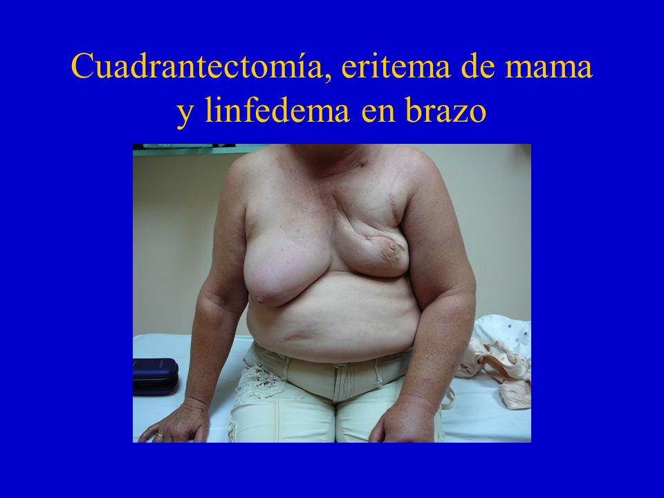 Cuadrantectomía, eritema de mama y linfedema en brazo