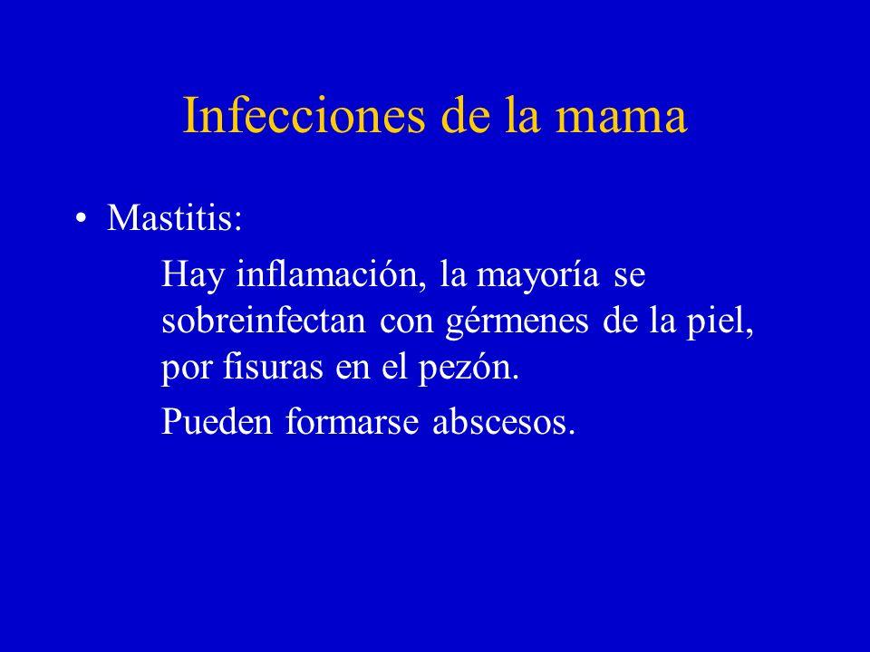 Infecciones de la mama Mastitis: