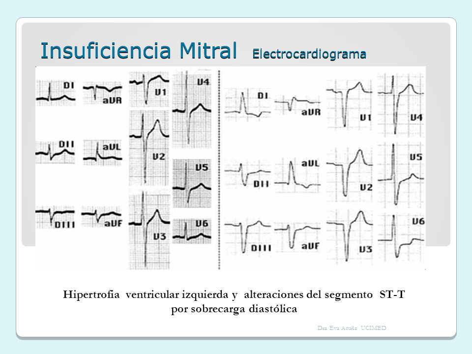 Insuficiencia Mitral Electrocardiograma