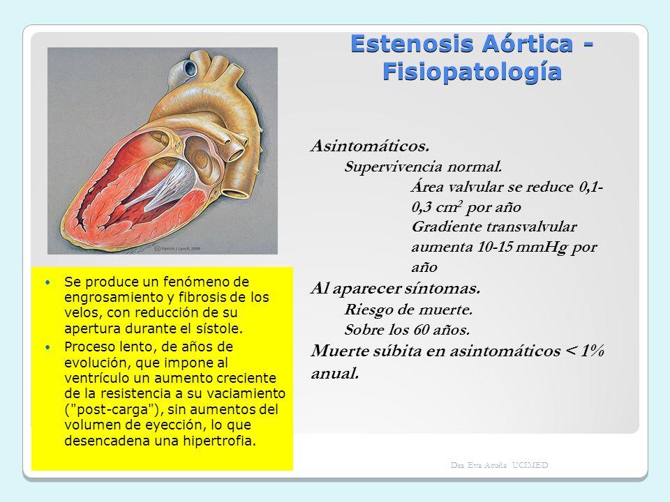 Estenosis Aórtica - Fisiopatología