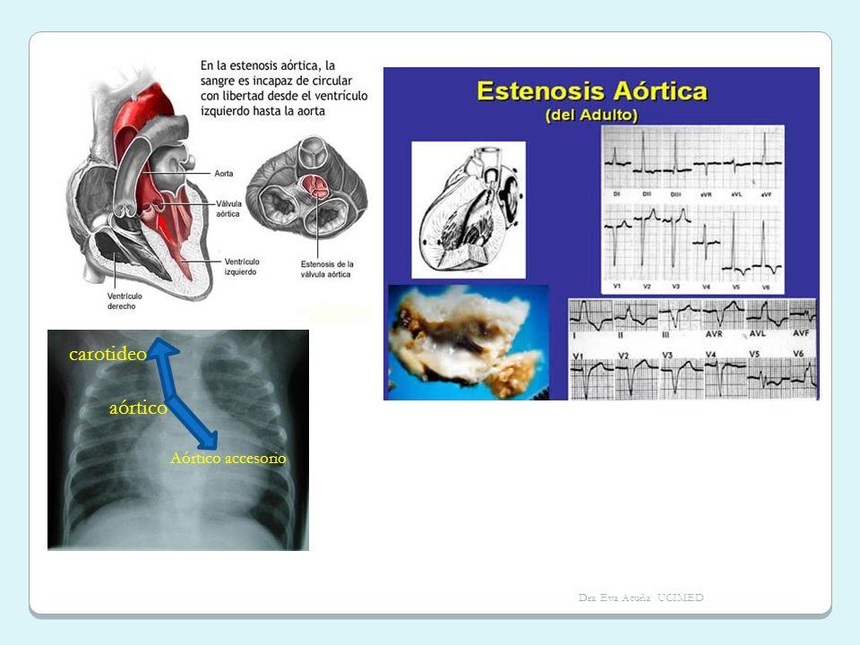 carotideo aórtico Aórtico accesorio Dra Eva Acuña UCIMED
