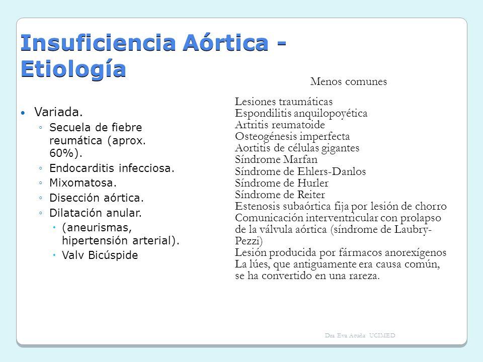 Insuficiencia Aórtica - Etiología