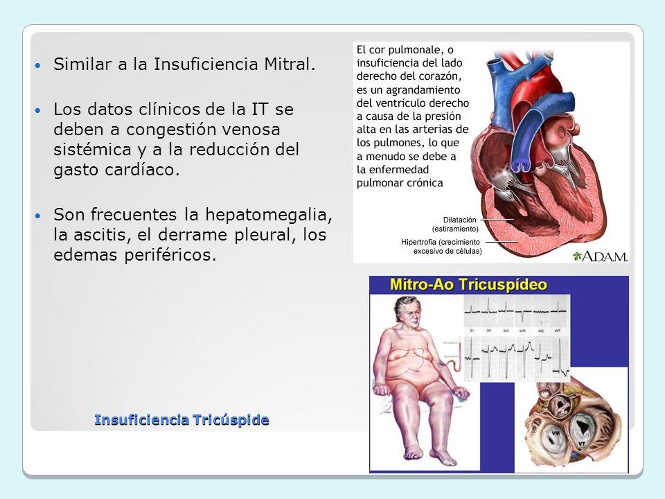Insuficiencia Tricúspide