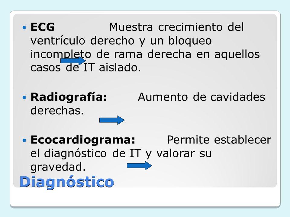 ECG Muestra crecimiento del ventrículo derecho y un bloqueo incompleto de rama derecha en aquellos casos de IT aislado.
