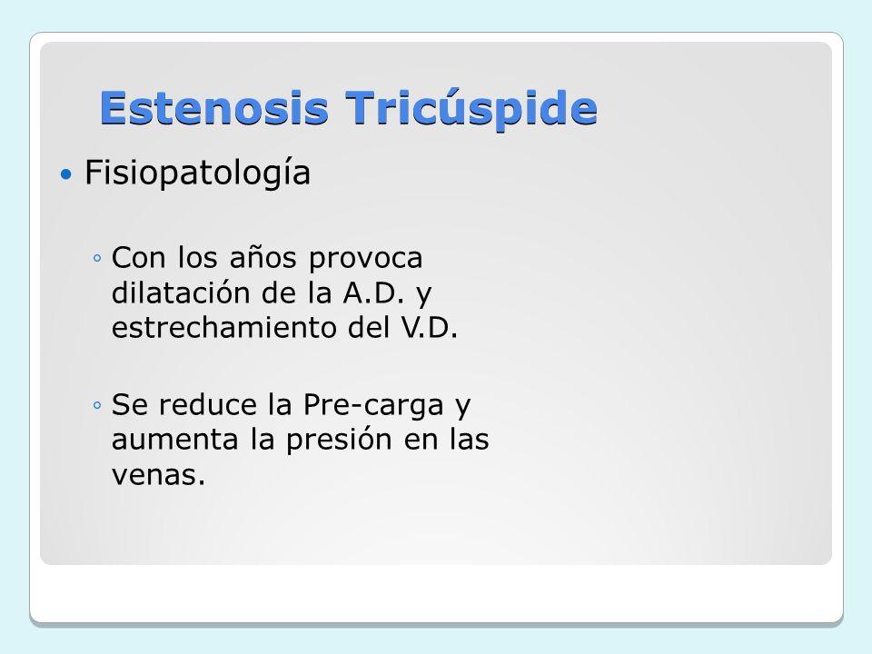 Estenosis Tricúspide Fisiopatología