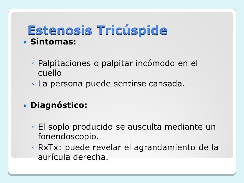 Estenosis Tricúspide Síntomas: