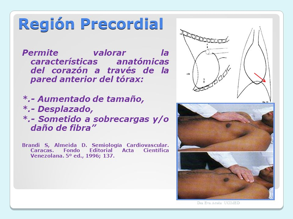 Región PrecordialPermite valorar la características anatómicas del corazón a través de la pared anterior del tórax: