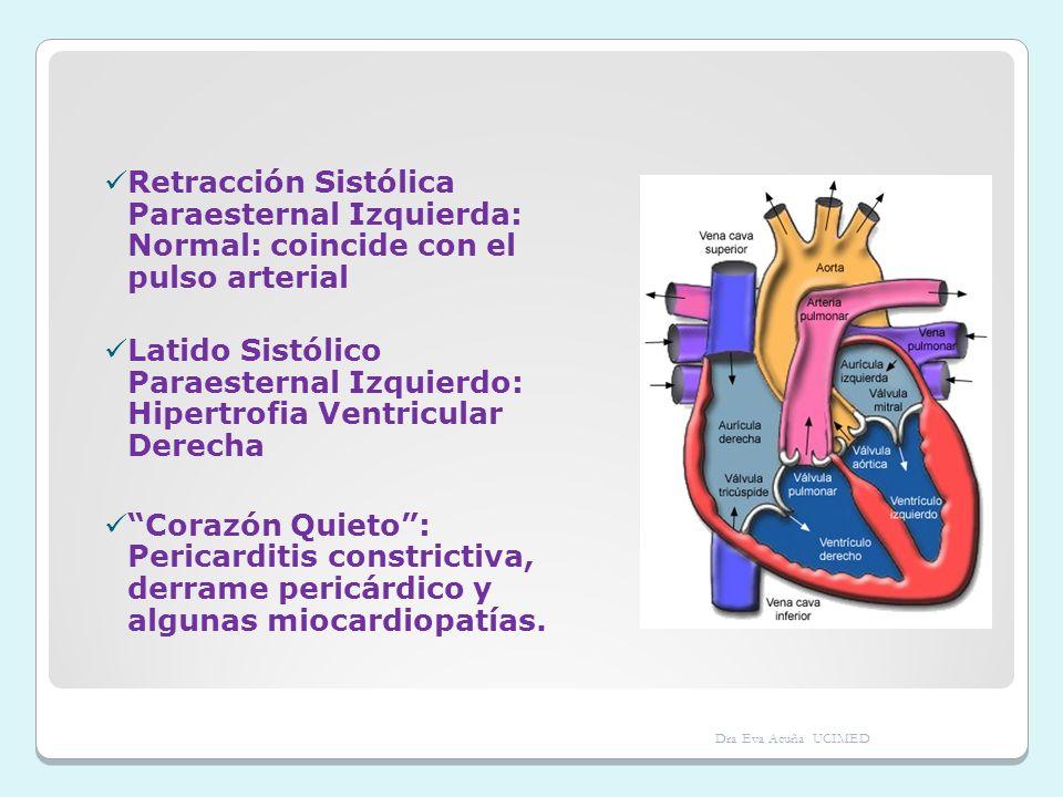 Retracción Sistólica Paraesternal Izquierda: Normal: coincide con el pulso arterial