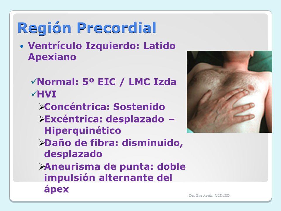 Región Precordial Ventrículo Izquierdo: Latido Apexiano