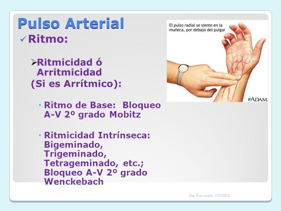 Pulso Arterial Ritmo: Ritmicidad ó Arritmicidad (Si es Arrítmico):