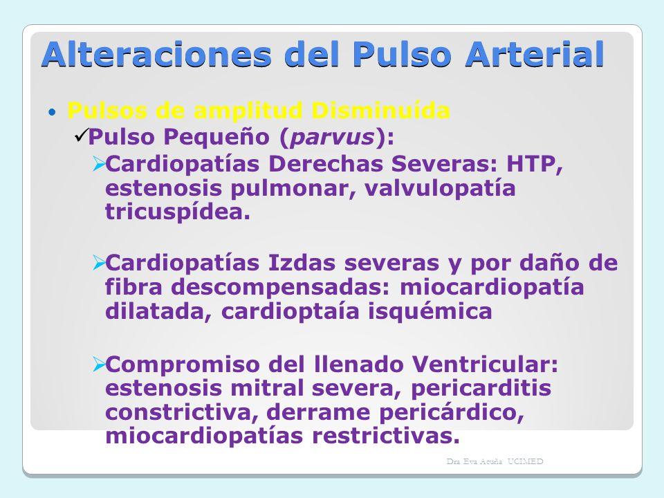Alteraciones del Pulso Arterial