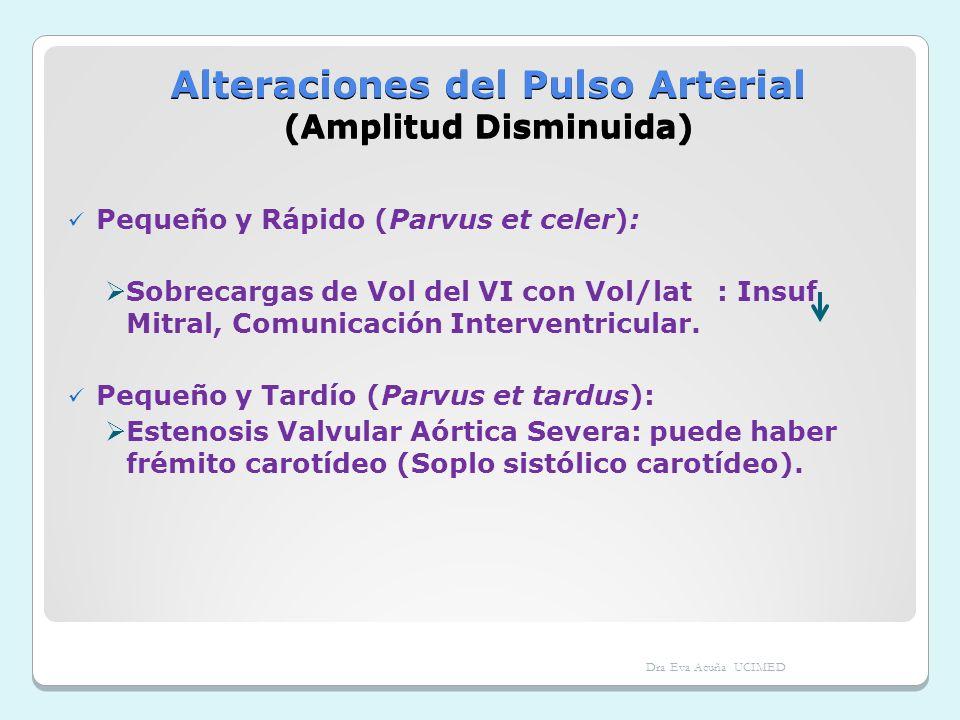 Alteraciones del Pulso Arterial (Amplitud Disminuida)