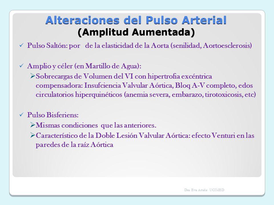 Alteraciones del Pulso Arterial (Amplitud Aumentada)