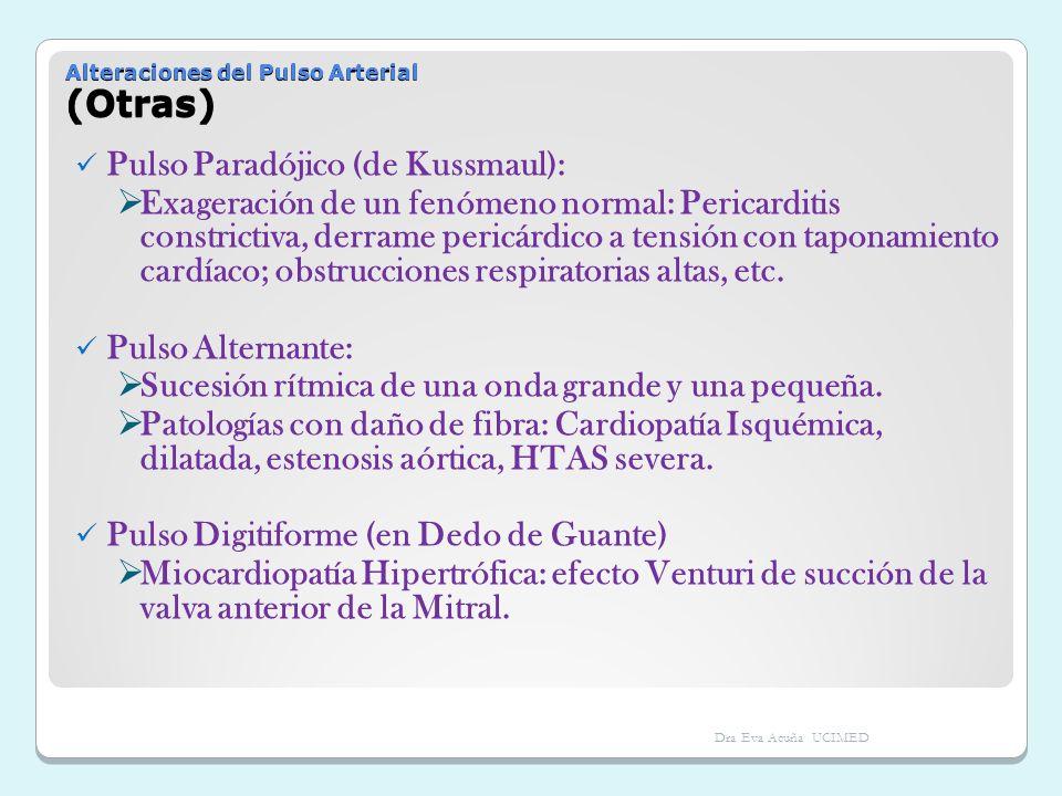 Alteraciones del Pulso Arterial (Otras)