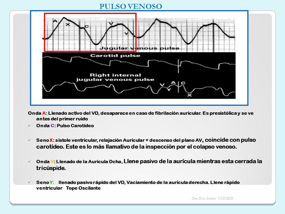 PULSO VENOSO Onda A: Llenado activo del VD, desaparece en caso de fibrilación auricular. Es presistólica y se ve antes del primer ruido.
