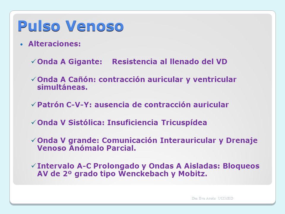 Pulso Venoso Alteraciones: