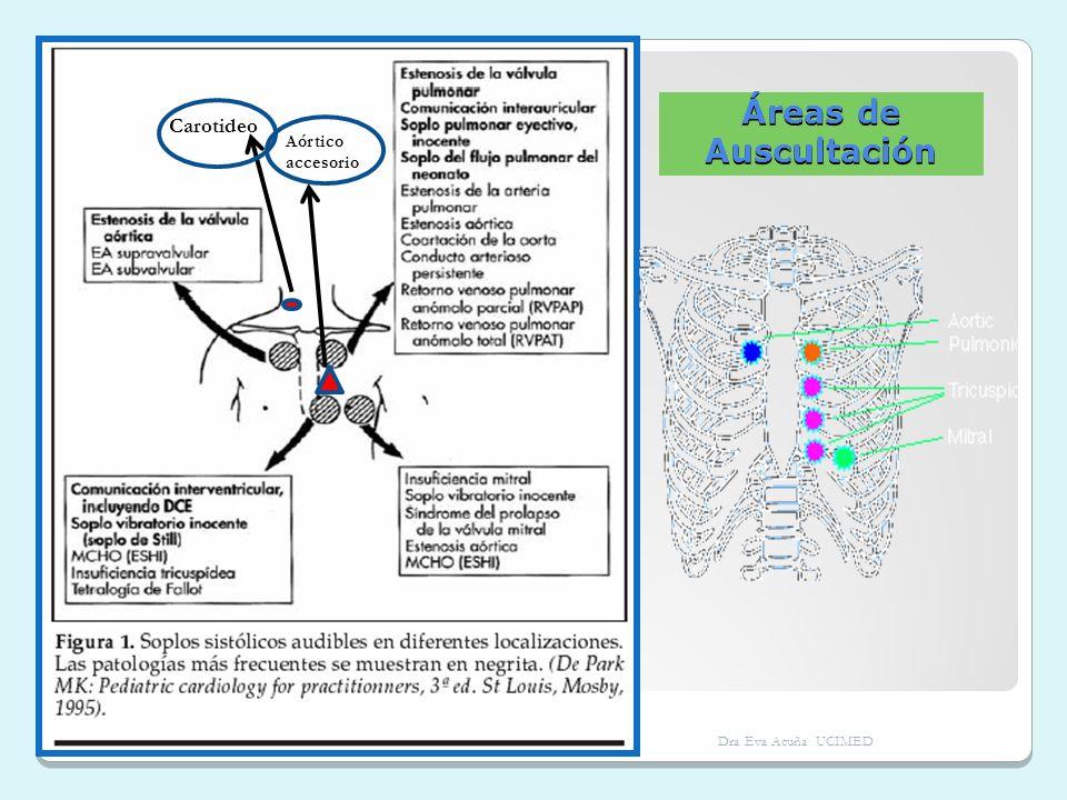 Áreas de Auscultación Carotideo Aórtico accesorio Dra Eva Acuña UCIMED