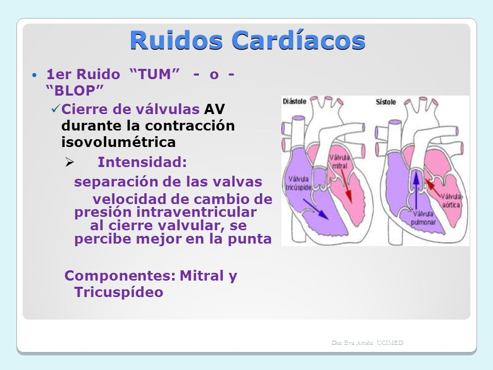 Ruidos Cardíacos 1er Ruido TUM - o - BLOP