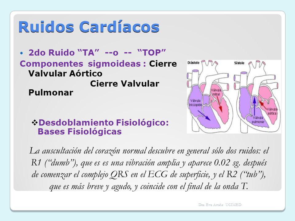 Ruidos Cardíacos2do Ruido TA --o -- TOP Componentes sigmoideas : Cierre Valvular Aórtico. Cierre Valvular Pulmonar.