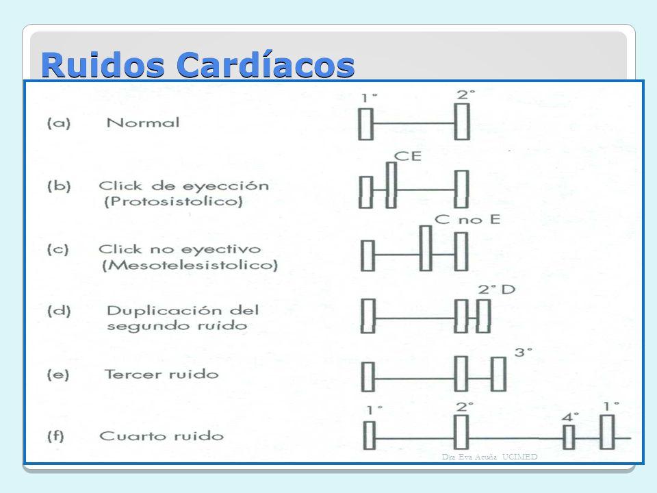 Ruidos Cardíacos Dra Eva Acuña UCIMED